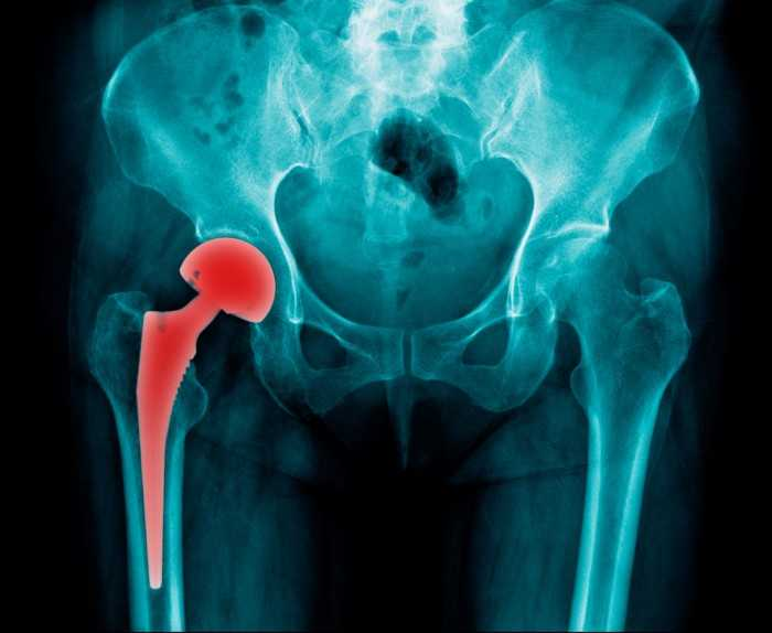 An x-ray showing a hip replacement.