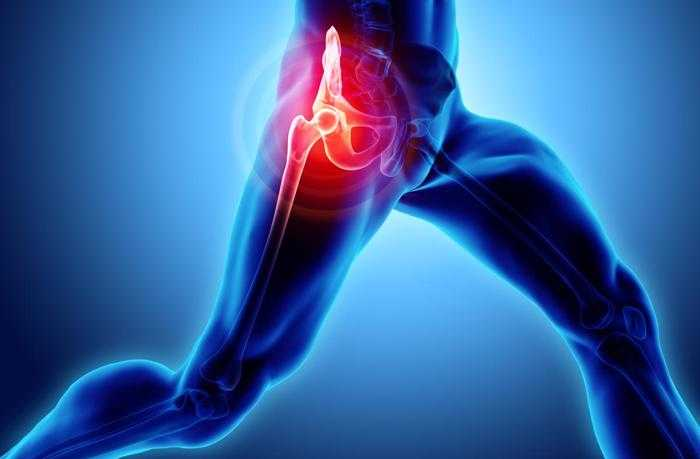 Contact a hip implant lawyer if your hip replacement left you injured.